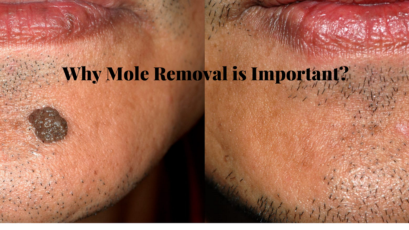 Why mole removal is important